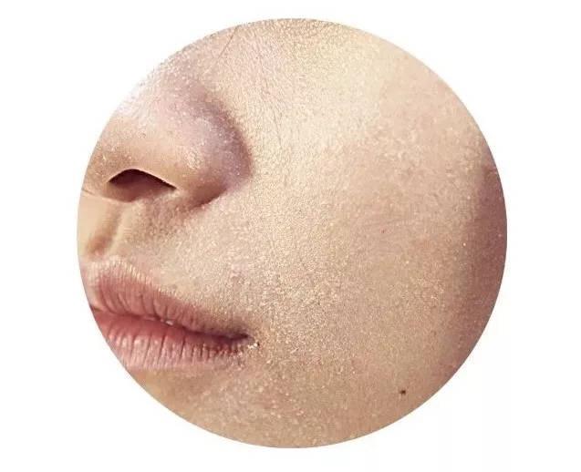 什么皮肤是干性皮肤,干性皮肤应该怎么做-第2张图片-爱薇女性网