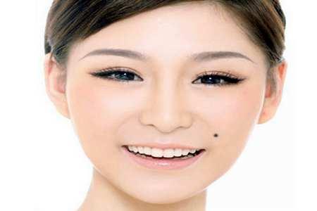 女人面部痣相图解,女人哪里长痣代表有福气-第3张图片-爱薇女性网
