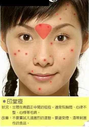 脸部各个部位长痘痘的原因示意图以及改善办法